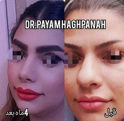 نمونه کار جراحی بینی دکتر حق پناه11