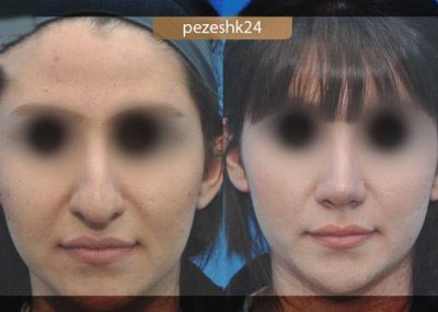 نمونه جراحی بینی دکتر فرزین سرکارات 8