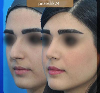 نمونه جراحی بینی دکتر فرزین سرکارات 2