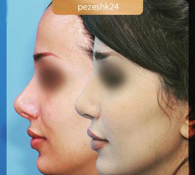 نمونه جراحی بینی دکتر فرزین سرکارات 4