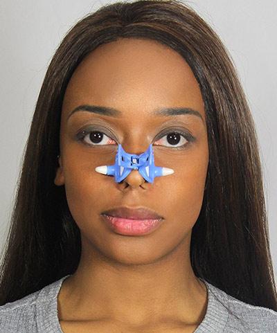 دستگاه های کوچک کننده بینی
