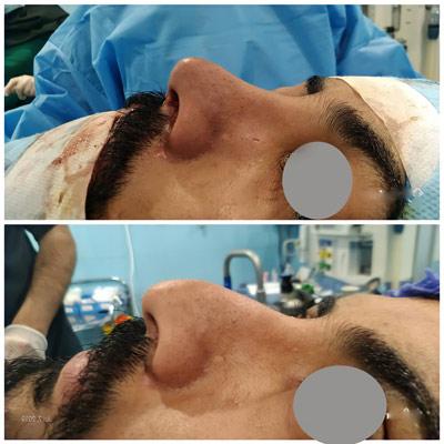 نمونه کار جراحی بینی دکتر عرفانیان6