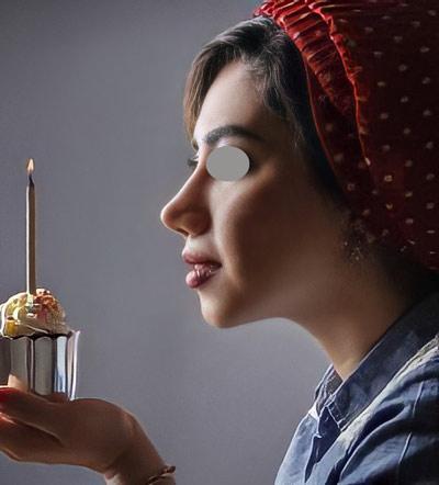 نمونه کار جراحی بینی دکتر عرفانیان4