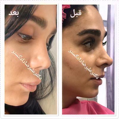 نمونه کار جراحی بینی دکتر دادگستر1