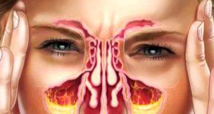 تاثیر سینوزیت بر روی جراحی بینی