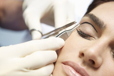 جراحی پلک در شیراز