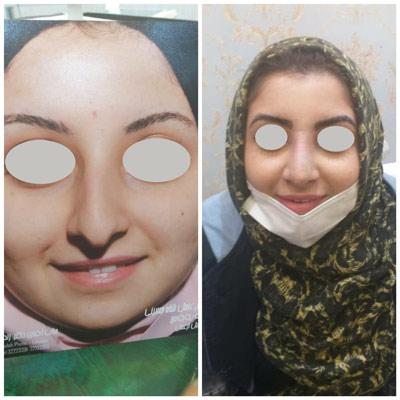 نمونه جراحی بینی دکتر زندی 6