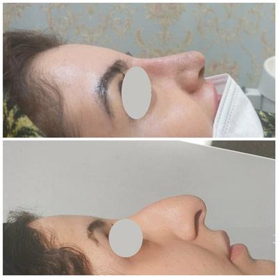 نمونه جراحی بینی دکتر زندی 2