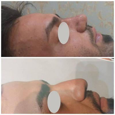 نمونه جراحی بینی دکتر زندی 4