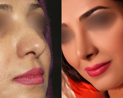 نمونه جراحی زیبایی بینی دکتر پورصادق 2