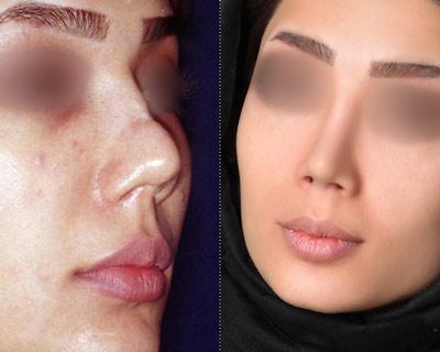نمونه جراحی زیبایی بینی دکتر پورصادق 4