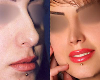 نمونه جراحی زیبایی بینی دکتر پورصادق 8