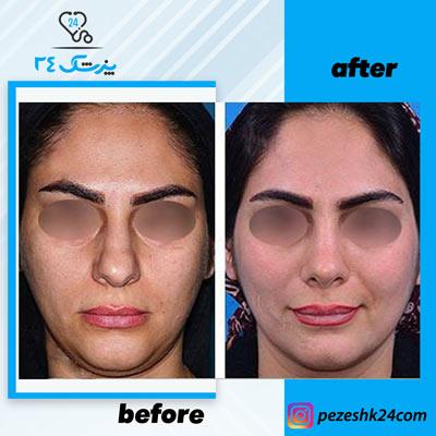 نمونه جراحی بینی دکتر بشارتی زاده1
