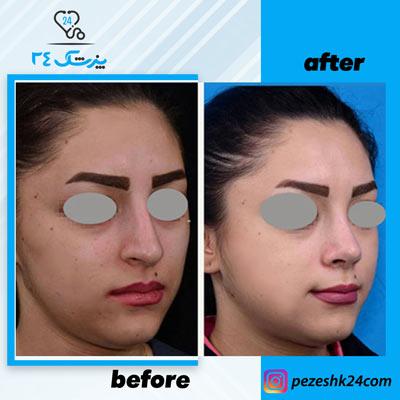 نمونه جراحی بینی دکتر بشارتی زاده3