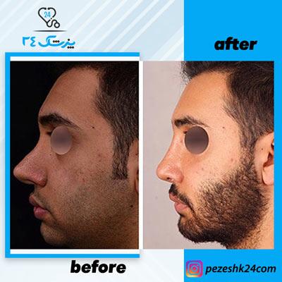نمونه جراحی بینی دکتر بشارتی زاده5