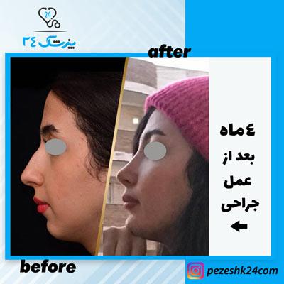 نمونه جراحی بینی دکتر بشارتی زاده6