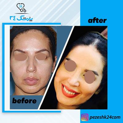 نمونه جراحی بینی دکتر بشارتی زاده8