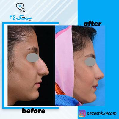 نمونه جراحی بینی دکتر بشارتی زاده9