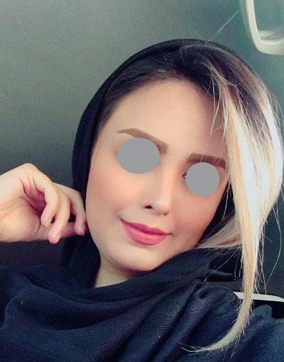 نمونه جراحی بینی دکتر حسنانی 8