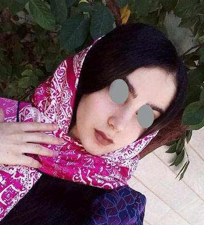 نمونه جراحی بینی دکتر حسنانی 12