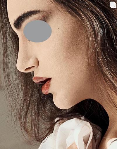 نمونه جراحی بینی دکتر حسنانی 1