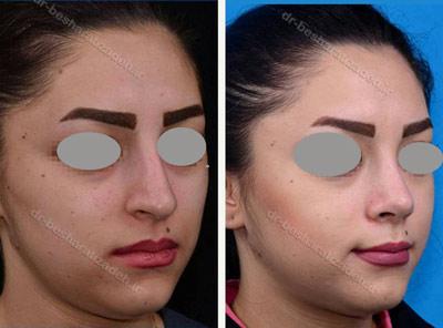 نمونه جراحی بینی دکتر بشارتی زاده 8