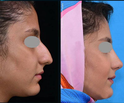 نمونه جراحی بینی دکتر بشارتی زاده 3