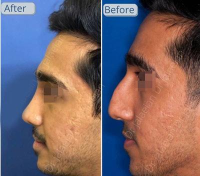 نمونه جراحی بینی دکتر جلائیان 10