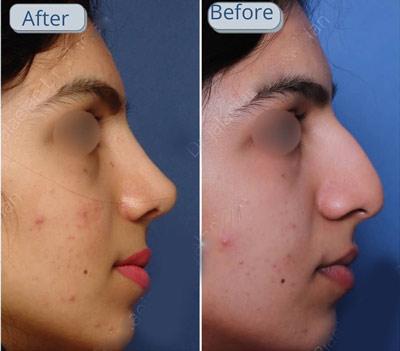 نمونه جراحی بینی دکتر جلائیان 11