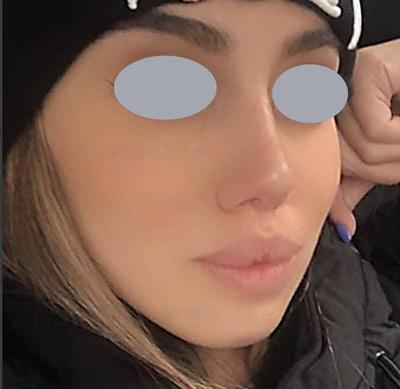 نمونه جراحی بینی دکتر جلائیان 1