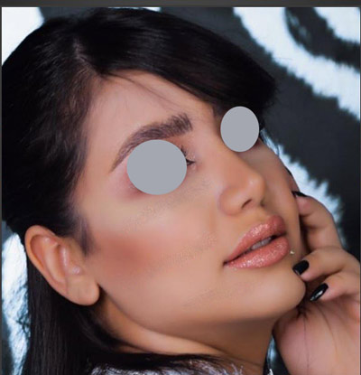 نمونه جراحی بینی دکتر جلائیان 2