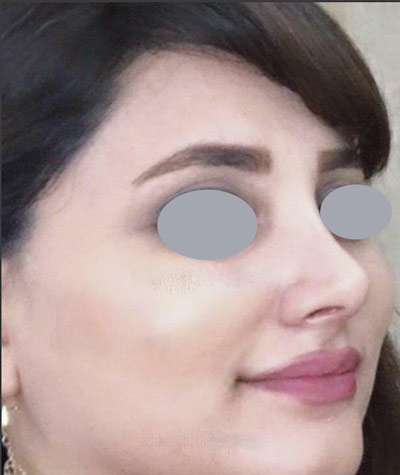 نمونه جراحی بینی دکتر جلائیان 3