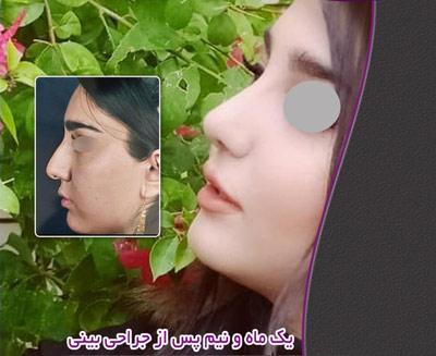 نمونه جراحی بینی دکتر مرادیان 2