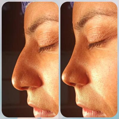 نمونه جراحی بینی دکتر مهرابی 4