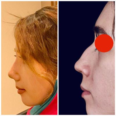 نمونه جراحی بینی دکتر کازرونی 4