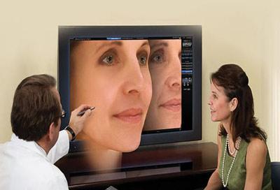جراحی بینی با قالب کنترلی در مشهد