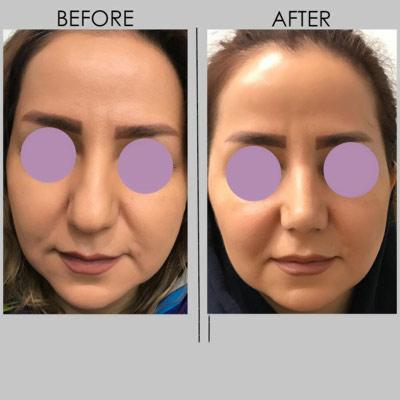 نمونه جراحی بینی دکتر کازرونی 7