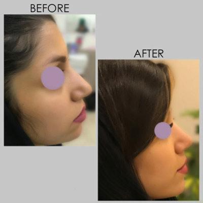 نمونه جراحی بینی دکتر کازرونی 8