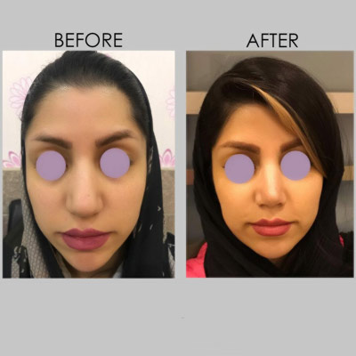 نمونه جراحی بینی دکتر کازرونی 9