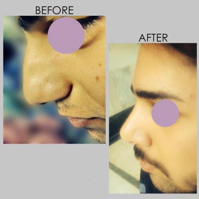 نمونه جراحی بینی دکتر کازرونی 10