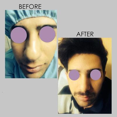 نمونه جراحی بینی دکتر کازرونی 11