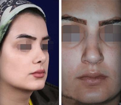 نمونه جراحی بینی دکتر زرین قلم 21