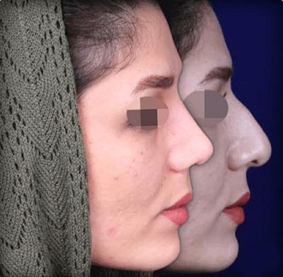 نمونه جراحی بینی دکتر زرین قلم 22