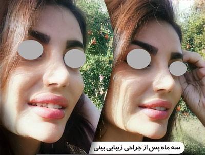 نمونه جراحی بینی دکتر مرادیان 5