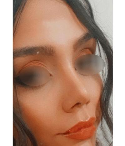 نمونه جراحی بینی دکتر زرگری 4