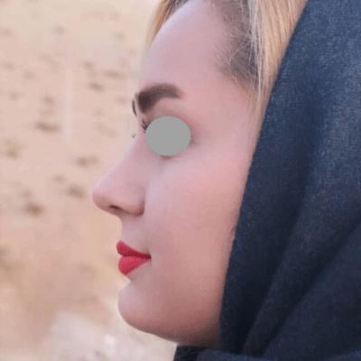 نمونه جراحی بینی دکتر حنیف اخوت 4