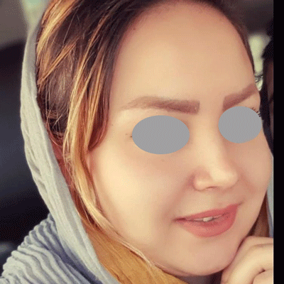 نمونه جراحی بینی دکتر حنیف اخوت 2