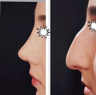 نمونه جراحی بینی دکتر لقمانی 3