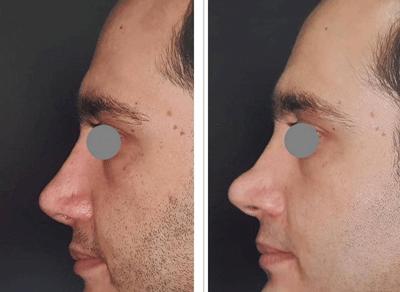 نمونه جراحی بینی دکتر لقمانی 4