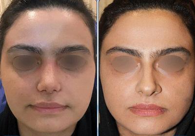 نمونه جراحی بینی دکتر نگین نجمی 6